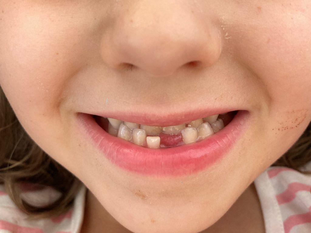 Kind mit Zahnlücke unten mittig. Die erste...